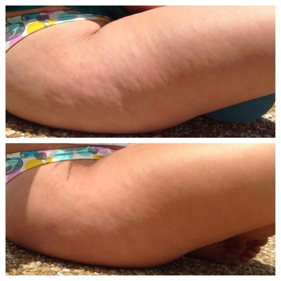 Erfolgreiches Ergebnis nach Anwendung der Tipps gegen Cellulite