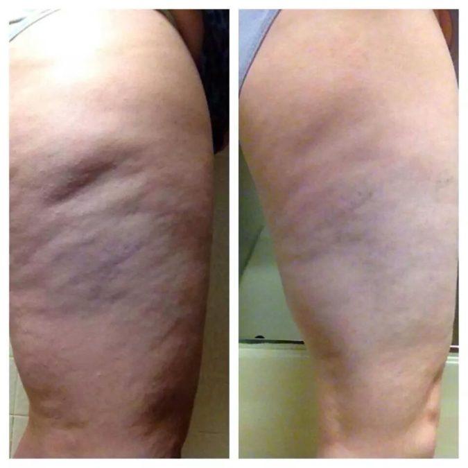 Orangenhaut fast wegbekommen und sichtbar glattere Haut nach mehreren Wochen der Anti-Cellulite Behandlung