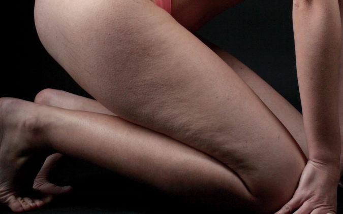 Cellulite Oberschenkel einer jungen Frau
