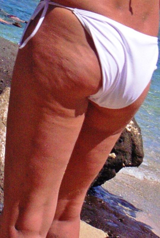 Cellulite am Po und den Oberschenkeln